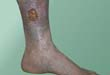 Venous leg ulcers usually appear on the inside of the lower leg.